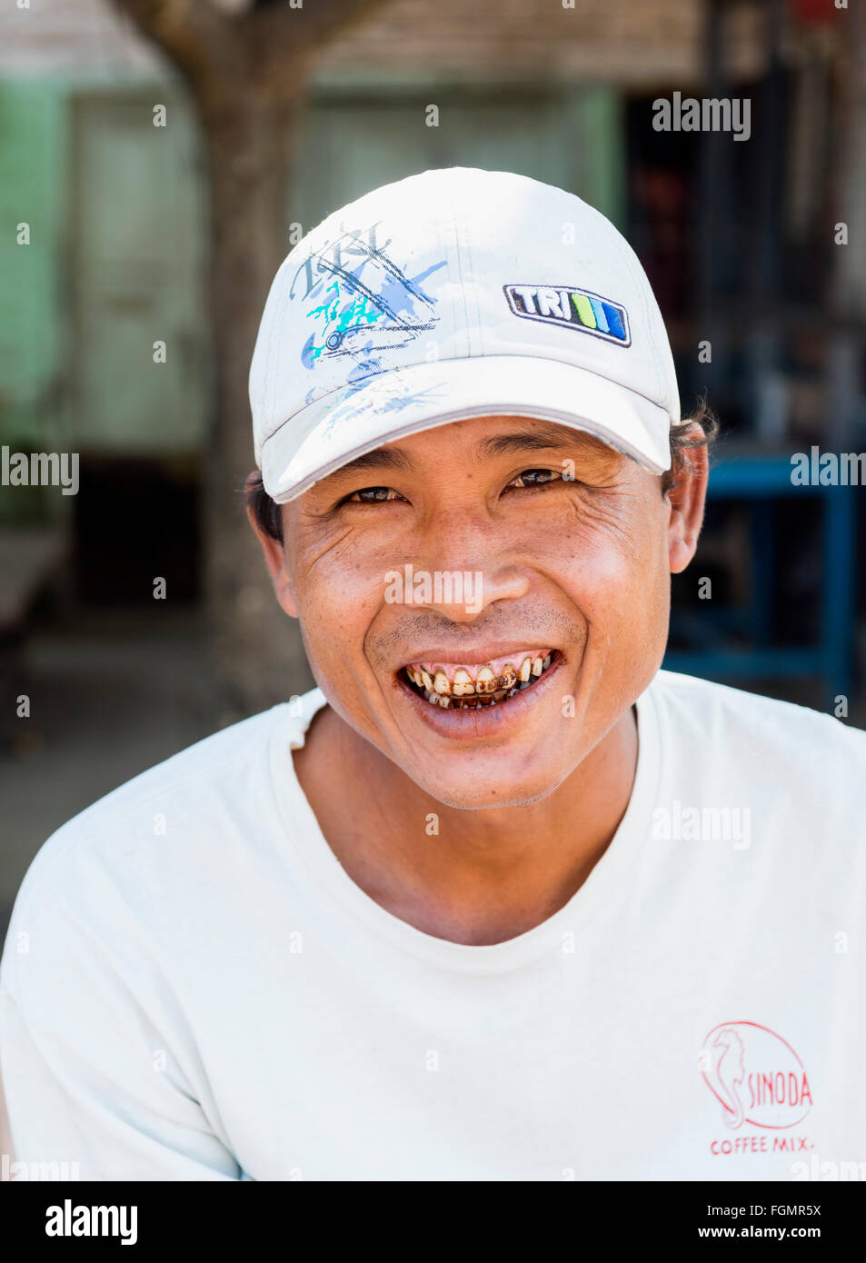 Teeth colored by chewing betel nuts - Stock Image