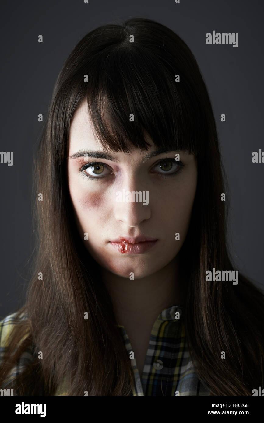 Female Victim Of Domestic Abuse - Stock Image