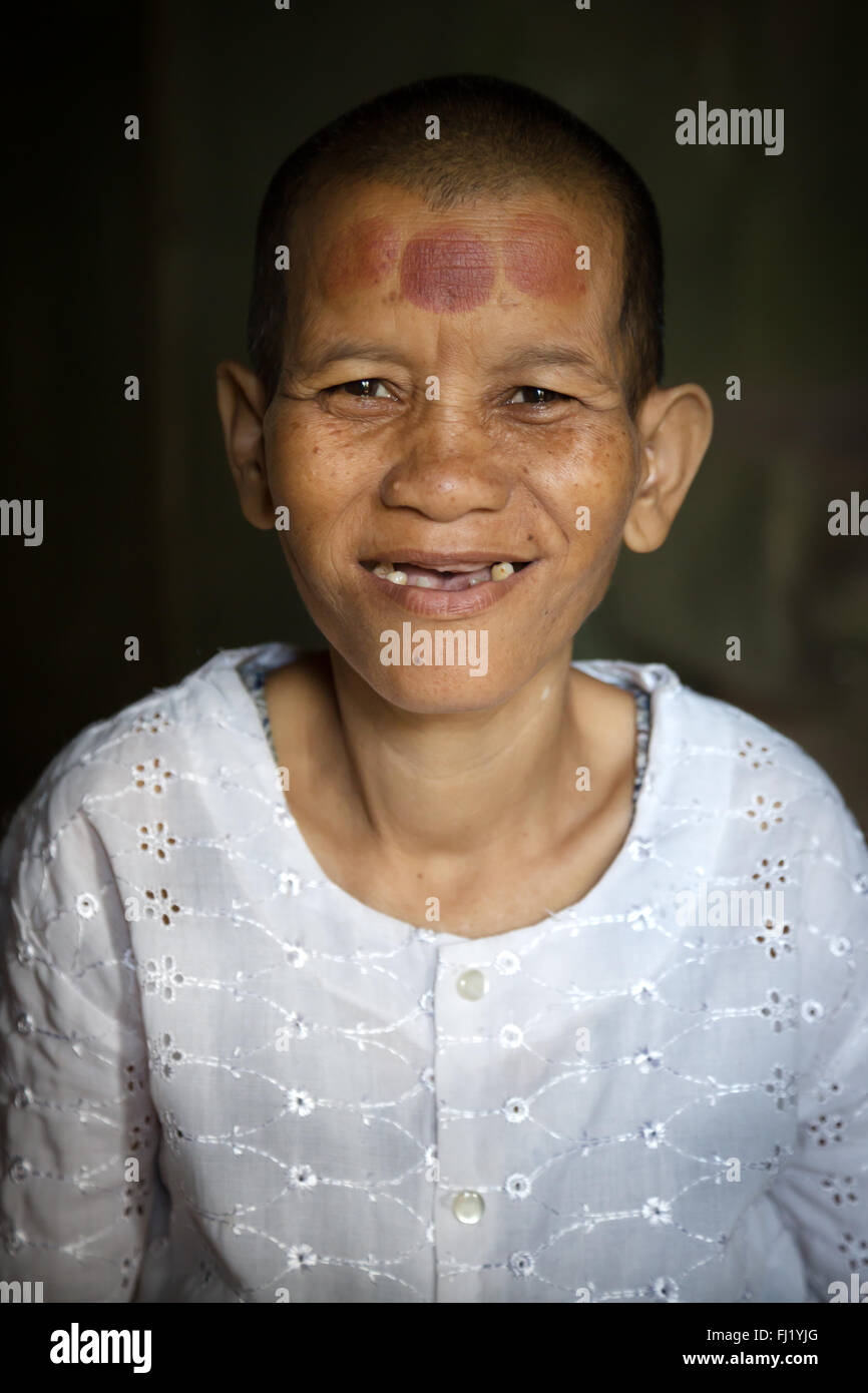 Cambodian Buddhist nun with marks of cupping therapy on forehead - Stock Image