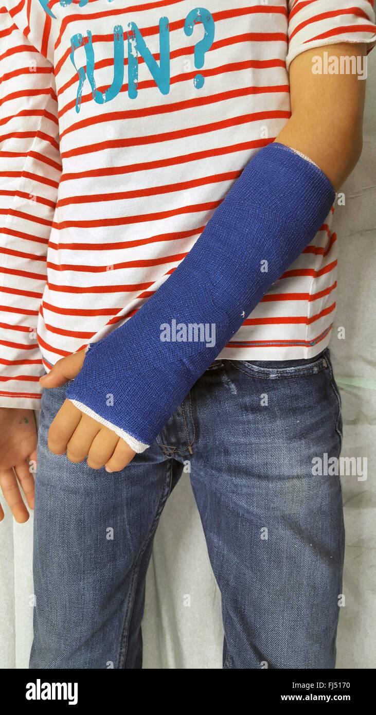 plaster after wrist fracture, immobilisation - Stock Image