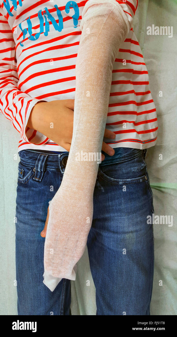 wrist fracture, arm is plastered, preparing - Stock Image