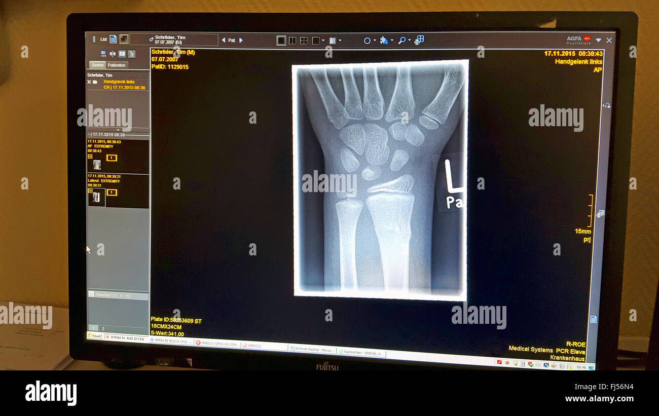 wrist fracture, x-ray photograph on computer screen - Stock Image