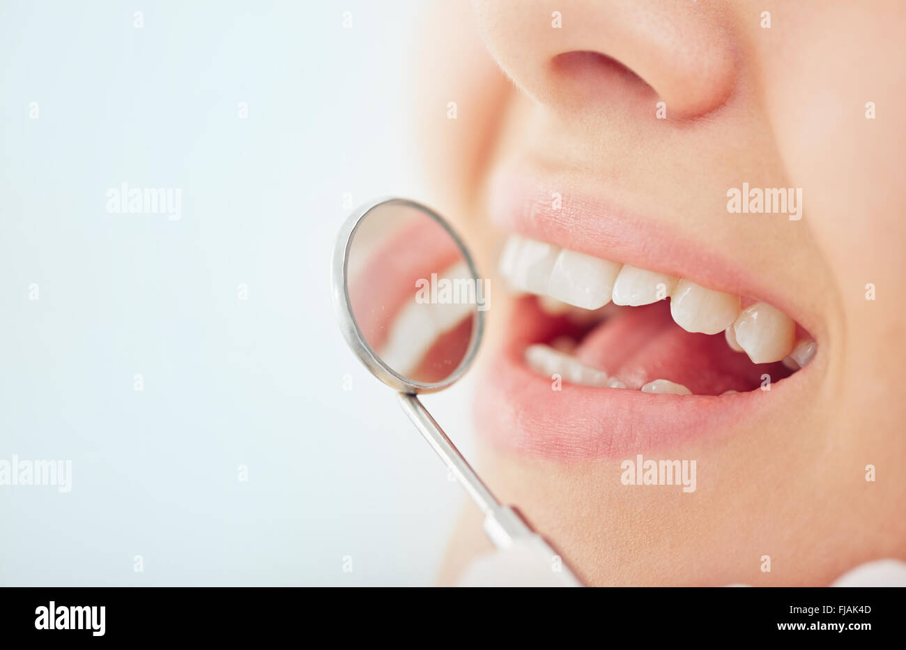 Close-up of open mouth during oral checkup at the dentist - Stock Image