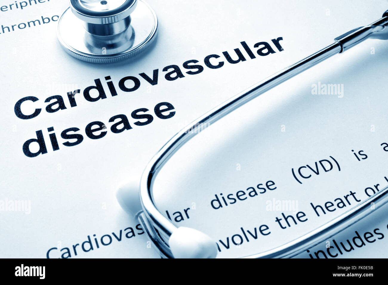 Paper with words Cardiovascular diseases and stethoscope. - Stock Image