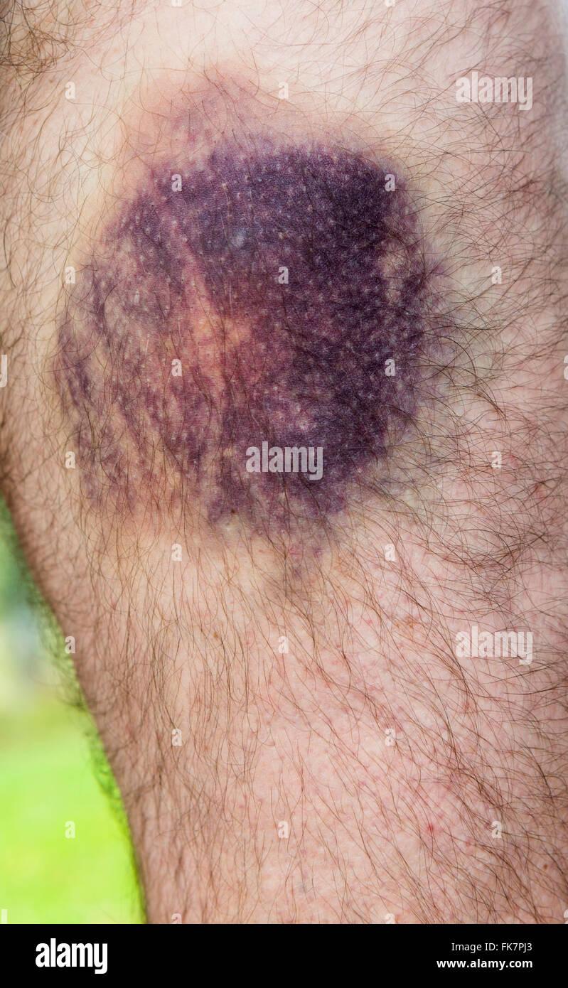 Bruised leg - Stock Image