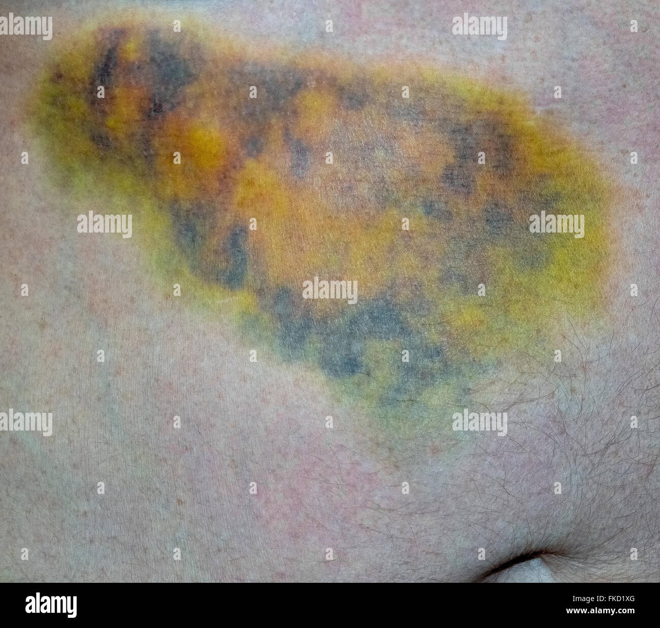 This close-up shows the multicolored effects of a body bruise on the stomach of a Caucasian man who fell and broke small blood vessels that leaked into the tissues under the skin. Bruises often turn various colors as they heal but usually fade away within two to four weeks without any long-lasting harm to the person. Stock Photo