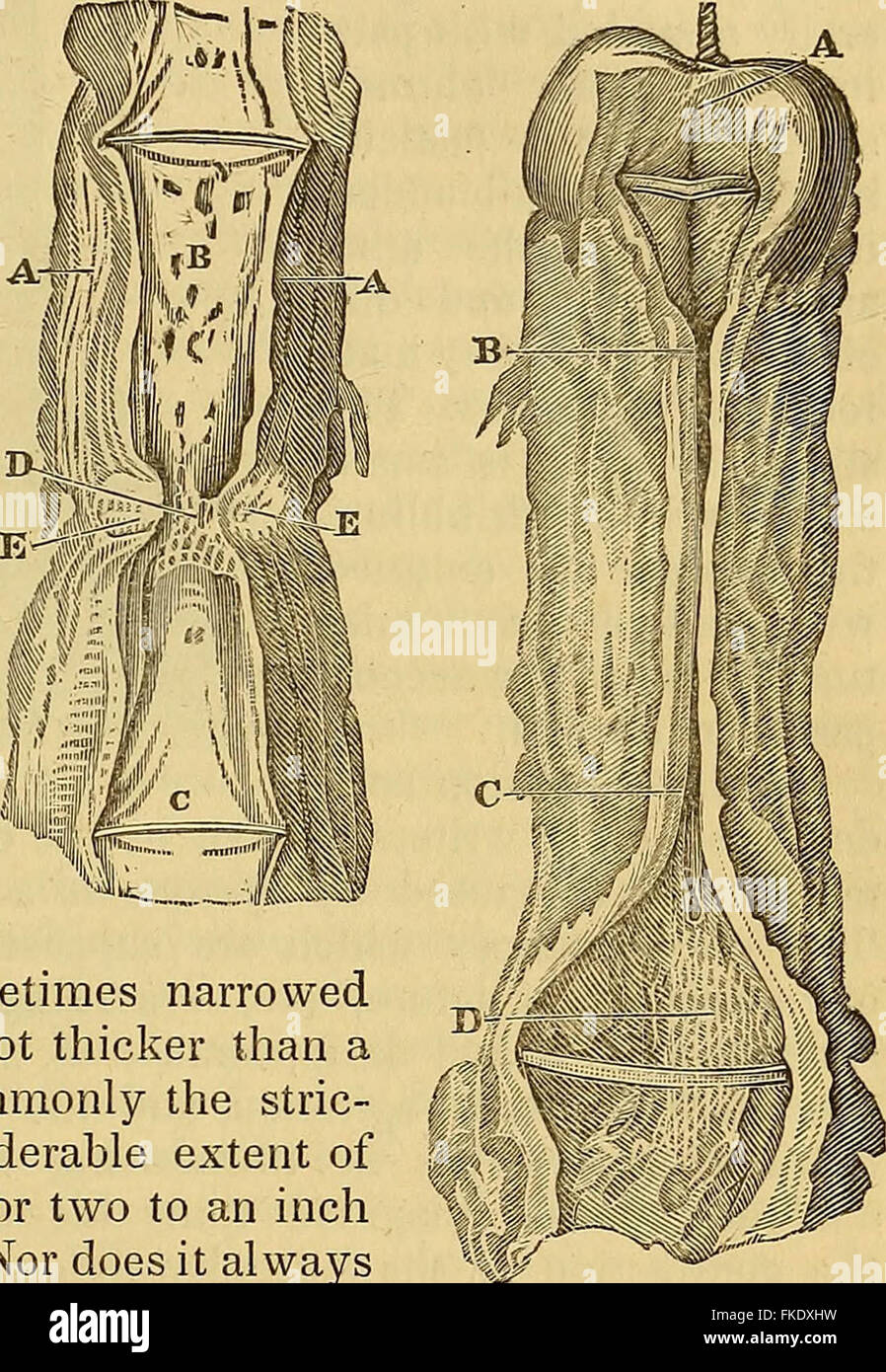 """Elements of pathological anatomy"" (1843) Stock Photo"
