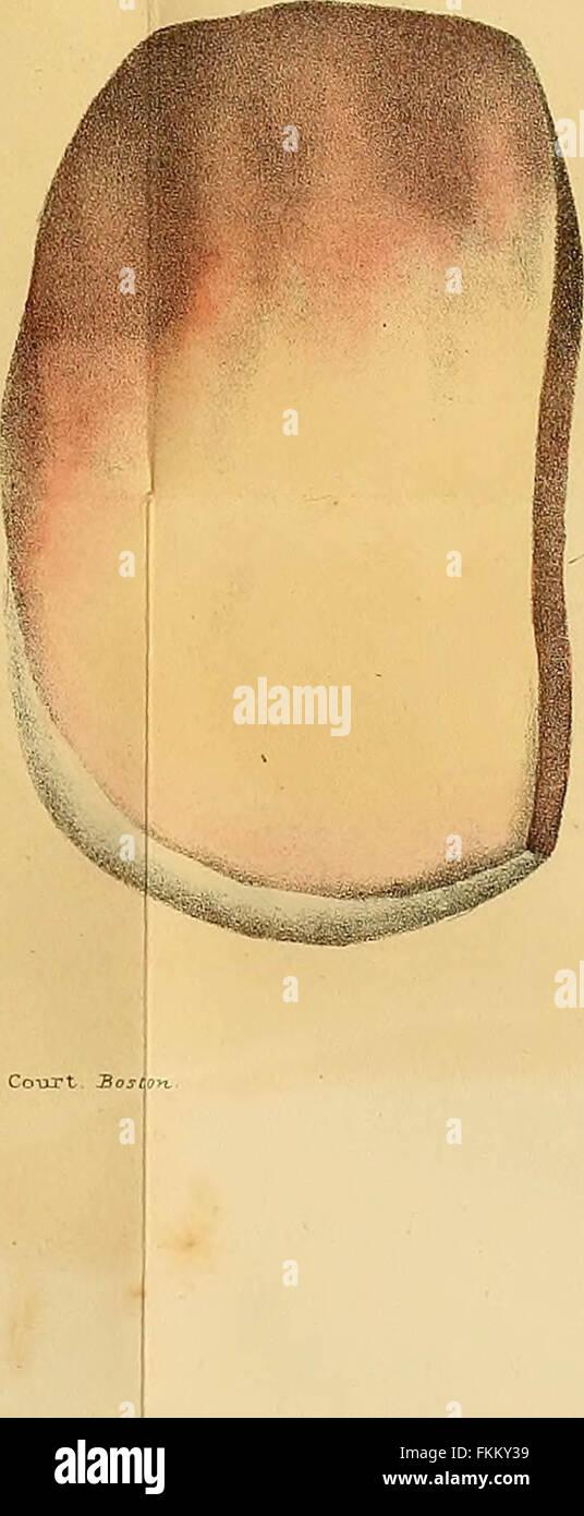 'Elements of pathological anatomy' (1843) - Stock Image