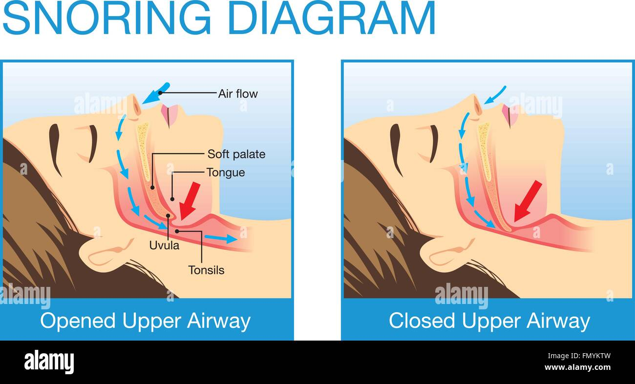 Anatomy Of Human Airway While Snoring Stock Vector Art