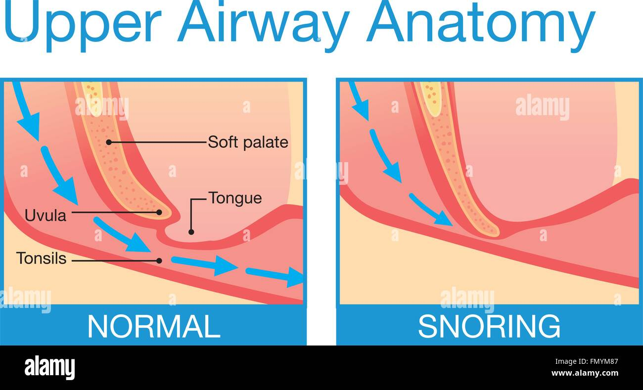 Upper airway human anatomy in normal sleeping and have snoring Stock ...