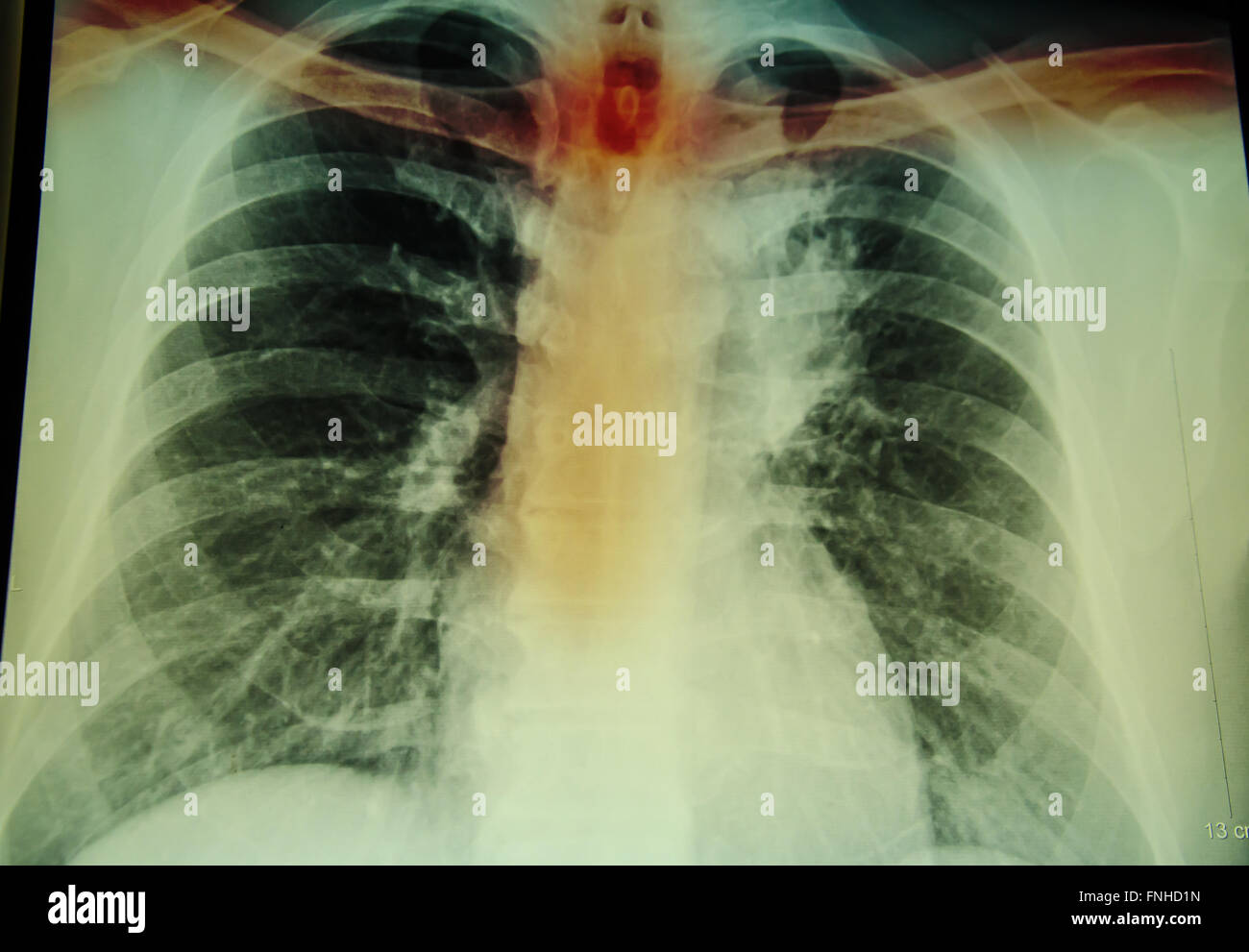 chest x-ray examination for diagnosis spine and cervical