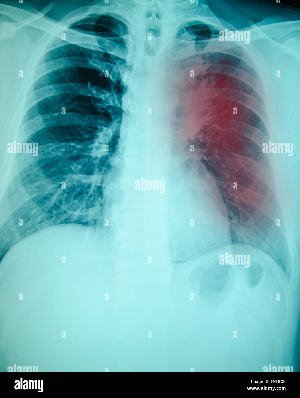 chest x-ray examination for diagnosis Pulmonary ...