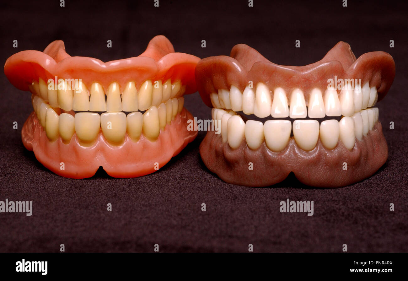 Two sets of full dentures. Dentures or false teeth are