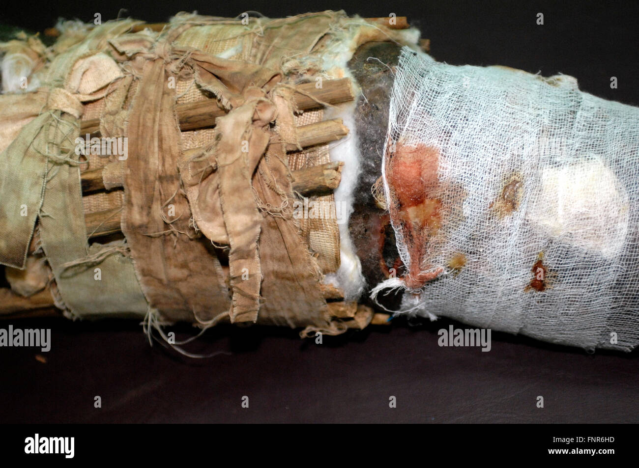 Home made splint supporting a pathological fractured leg.A pathologic fracture is a broken bone caused by disease, - Stock Image