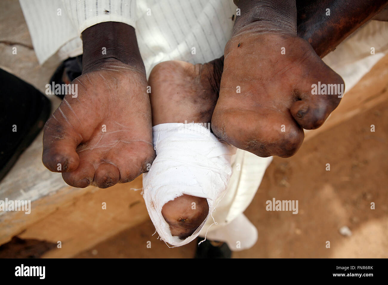 Leprosy patient known also as Leper,a disease called by ...