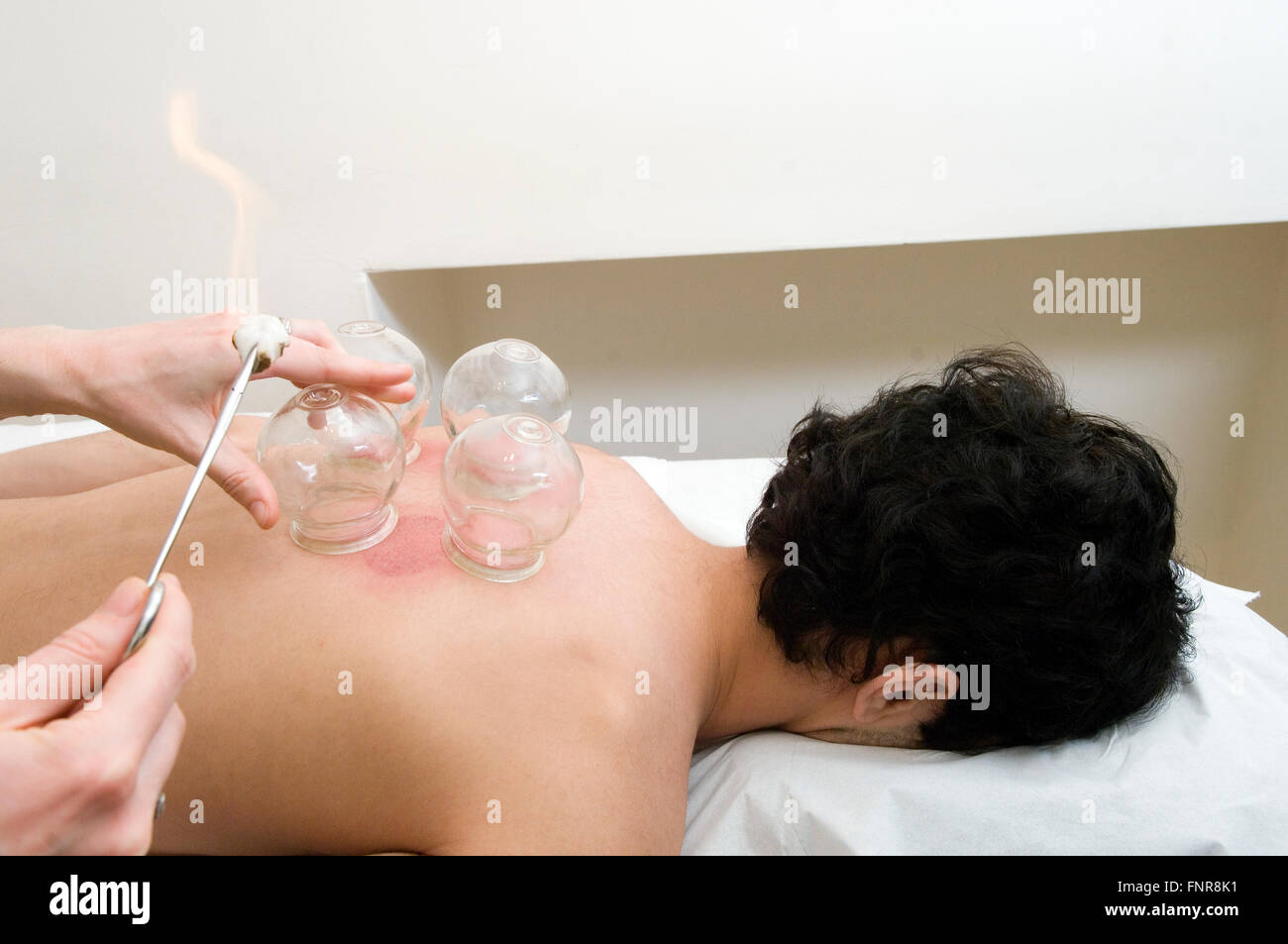 Male acupuncture patient undergoes cupping, a technique where a glass cup is suctioned onto the body. - Stock Image
