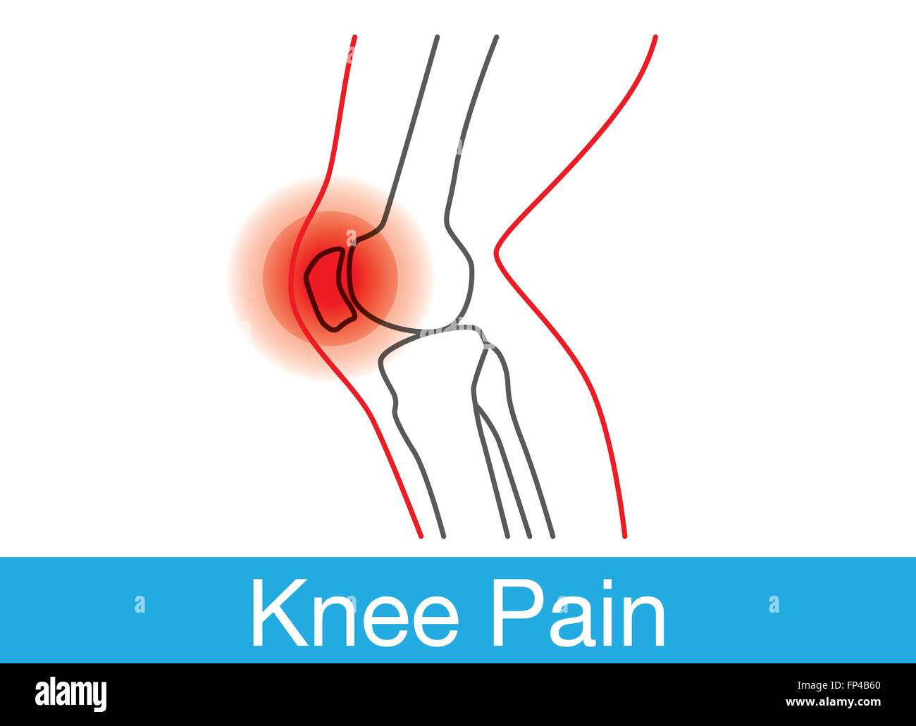 Diagram Outline Pain Block And Schematic Diagrams Blank Human Body Knee Stock Vector Art Illustration Image Rh Alamy Com Inside The Research