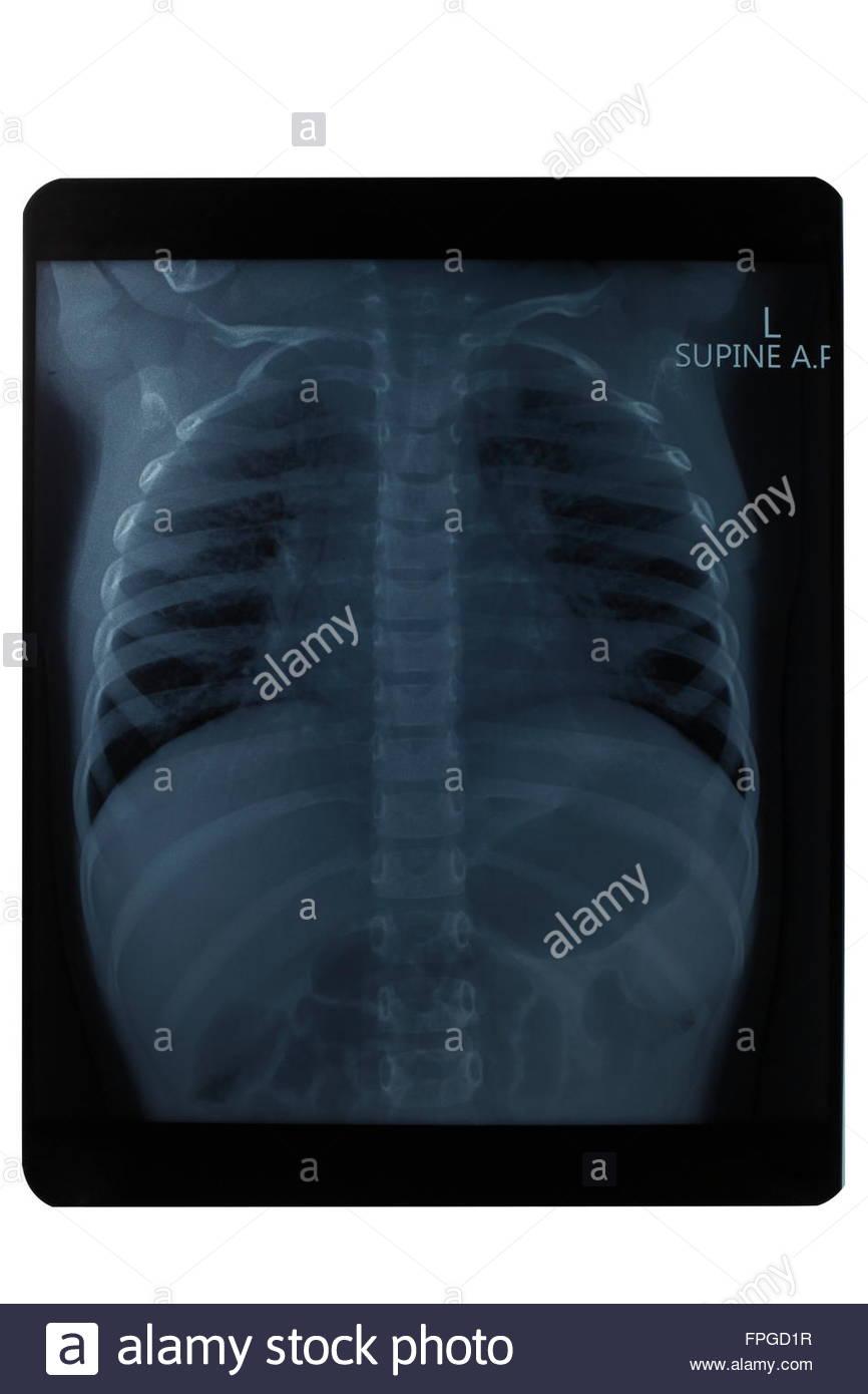 upper body x-ray image, health, medicine - Stock Image