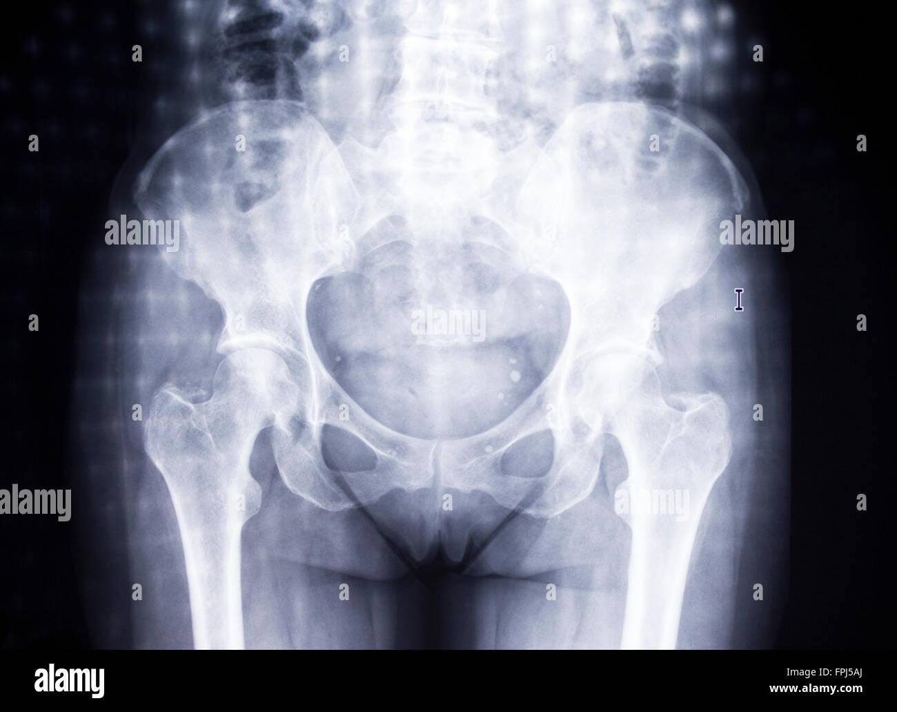 Bone scan. Woman's hips - Stock Image