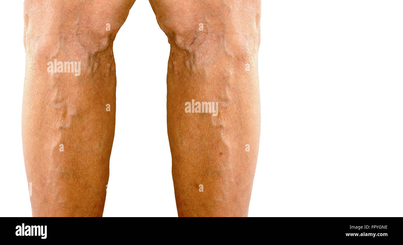 varicose veins in the leg of old asia woman (free space for text) - Stock Image