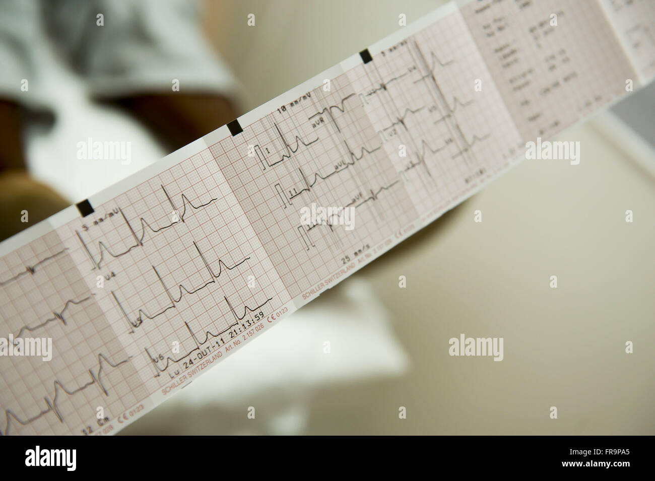 Electrocardiogram done by van needy population health in the Complexo do Alemao - Stock Image