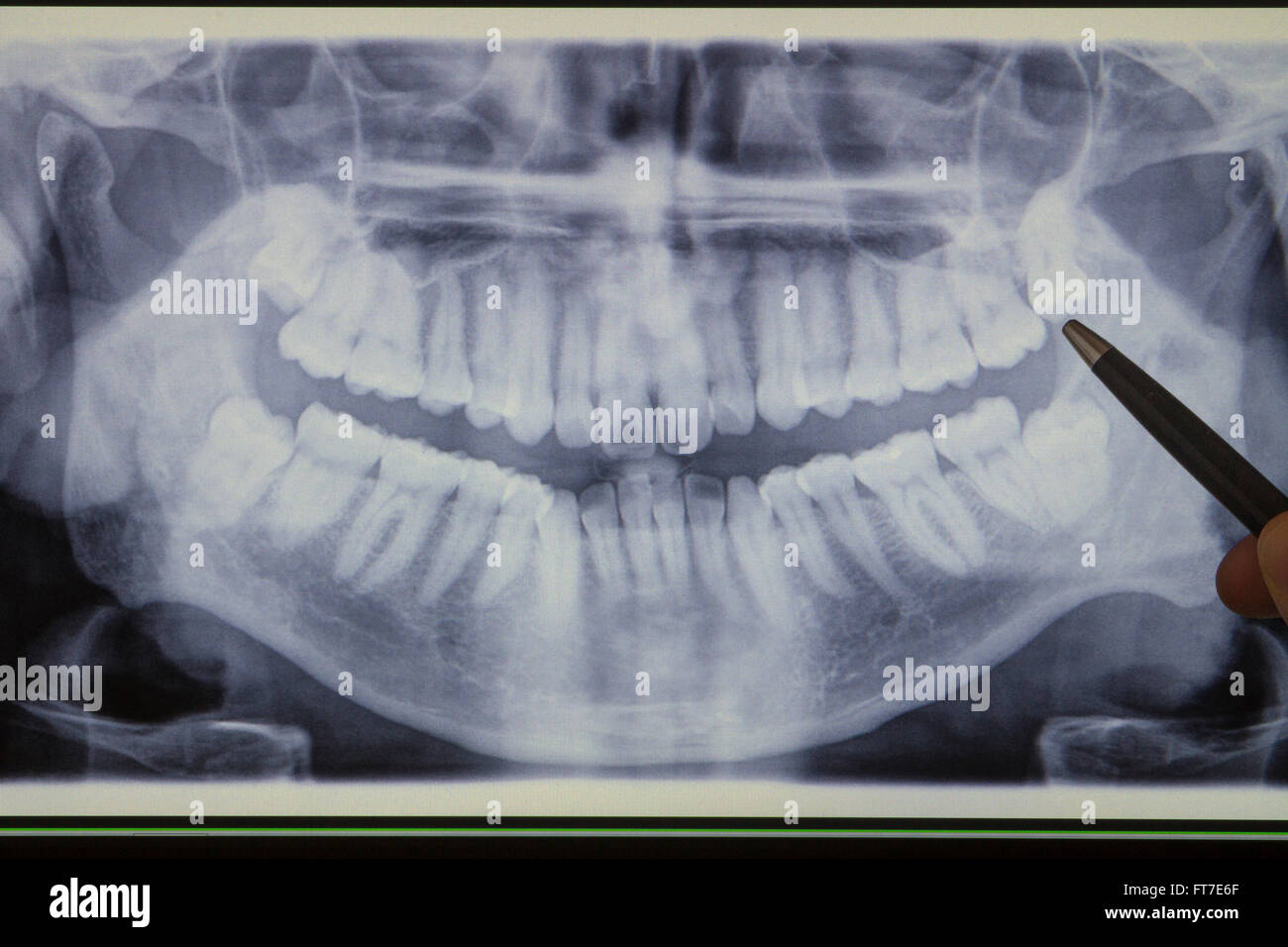 Pen indicating a wisdom tooth on a panoramic dental radiograph - Stock Image
