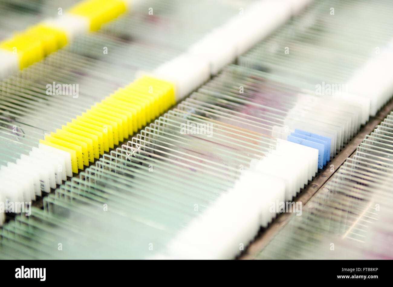 Racks of glass microscope slides containing patient or research test samples from a hospital pathology laboratory. - Stock Image