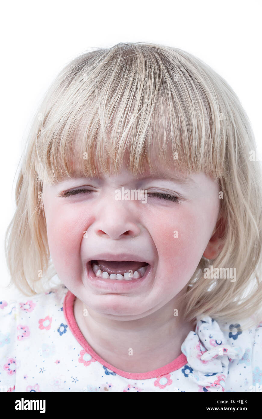 A crying teething baby girl with red swollen cheeks. - Stock Image