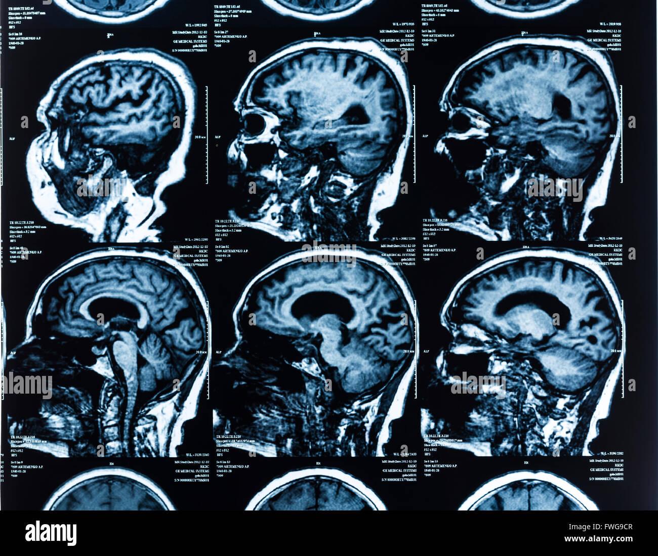 Mri scan (magnetic resonance imaging) of the human head. - Stock Image