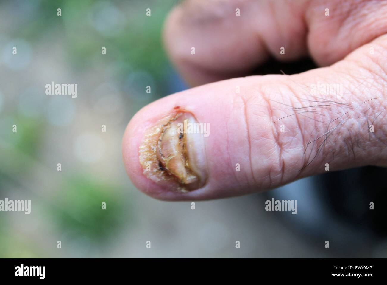 swollen finger without fingernail Stock Photo: 102011511 - Alamy
