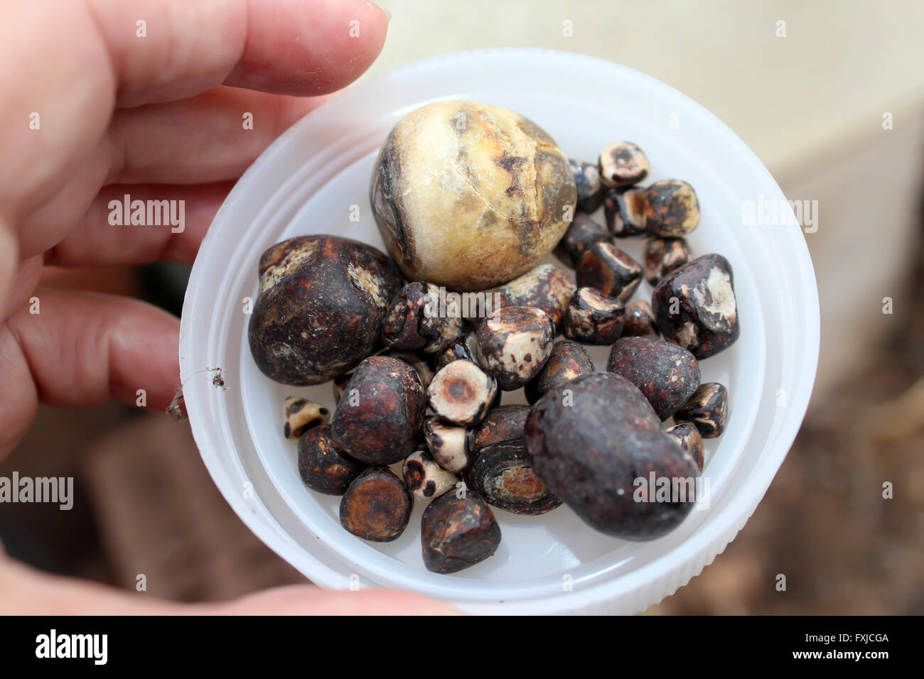 Gallstones Small Hard Crystalline Mass Formed In The Gall