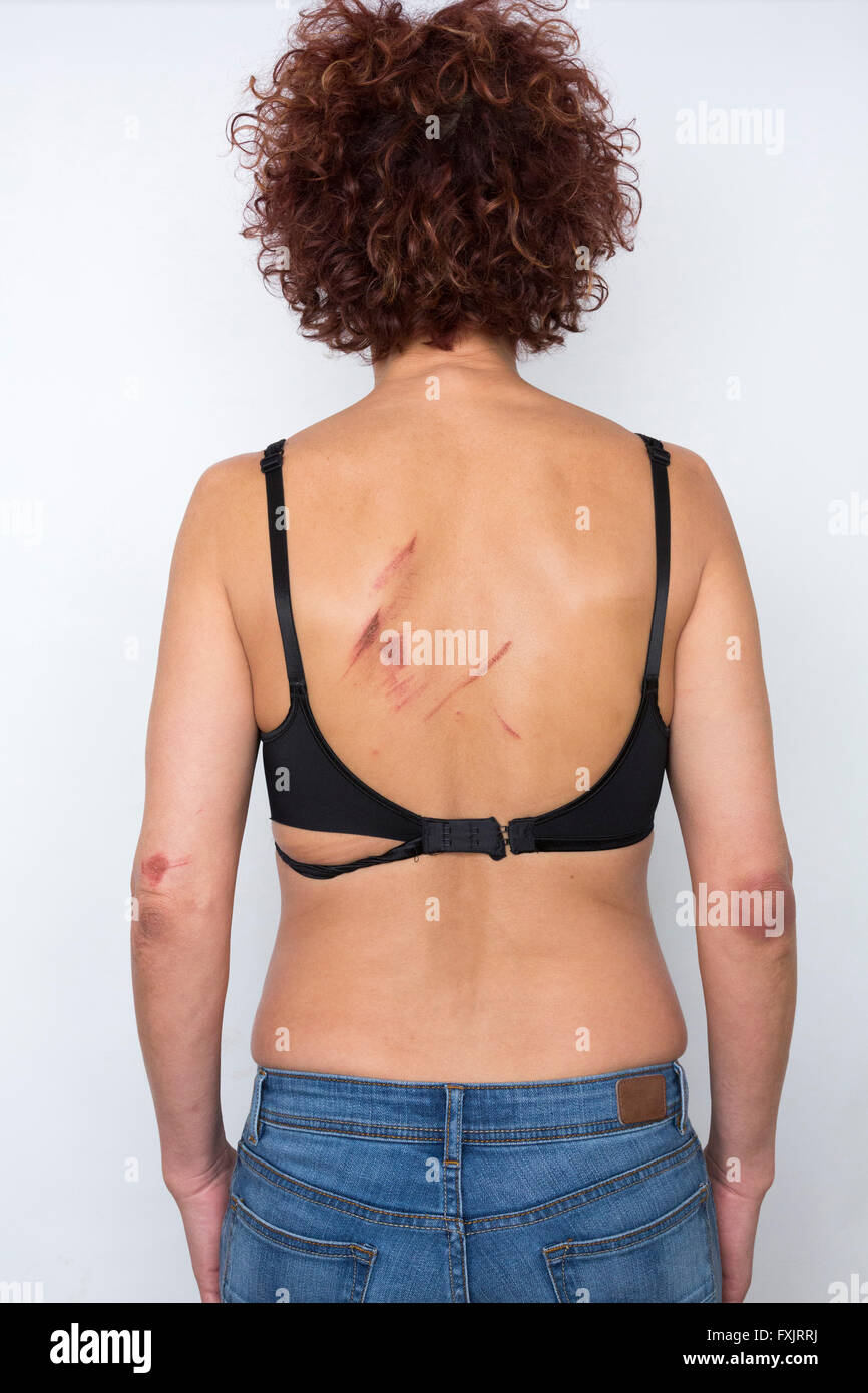 woman with bruises - Stock Image