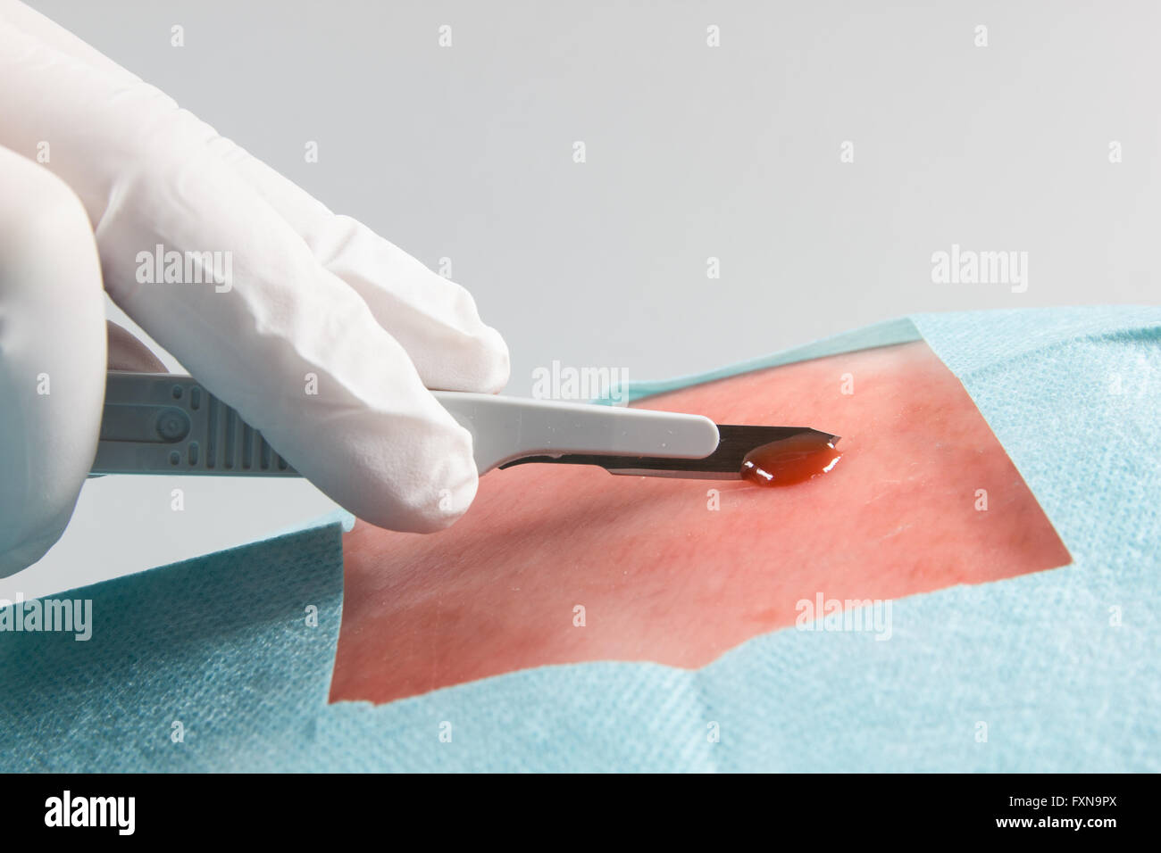 operation with scalpel - Stock Image
