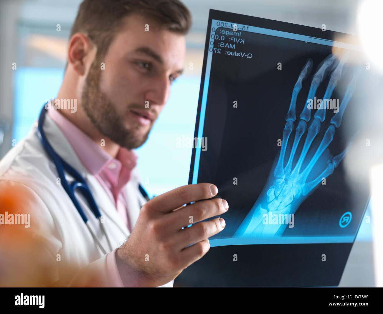 Junior doctor examining x-ray of fractured hand in hospital - Stock Image