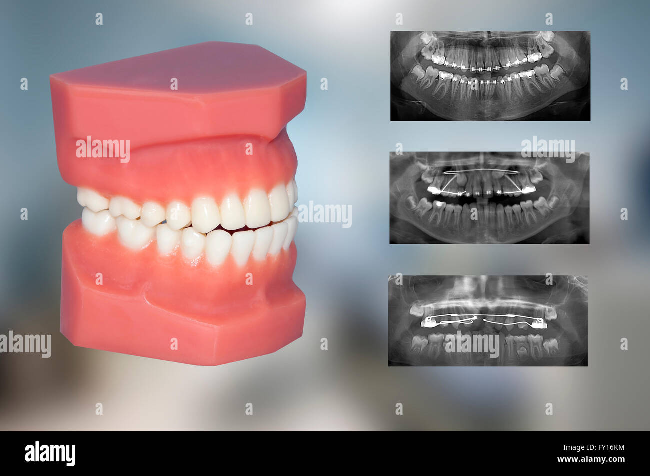 teeth model and different types of appliances - Stock Image
