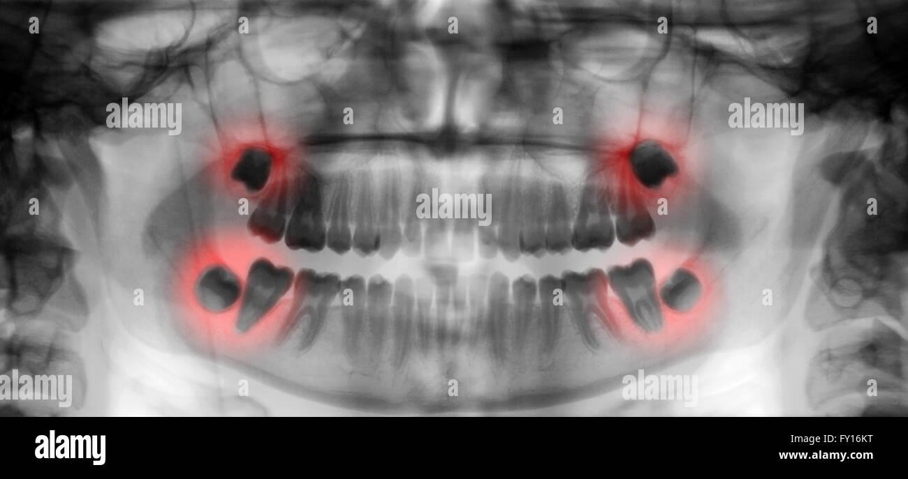dental scan xray display wisdom and molars pain - Stock Image