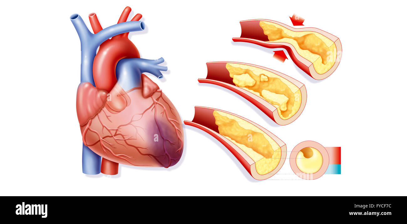 Heart Attack Drawing Stock Photo 102922944 Alamy