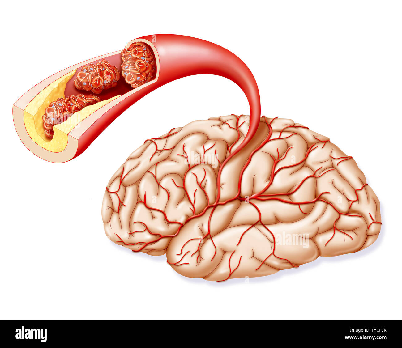 CEREBROVASCULAR ACCIDENT - Stock Image