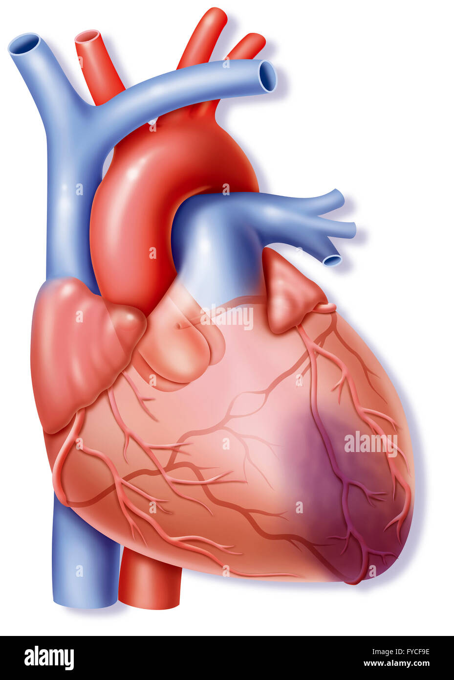 Heart Attack Drawing Stock Photo 102923002 Alamy