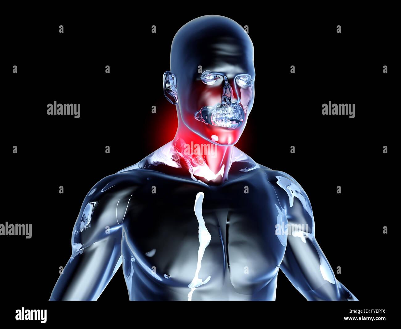 Sore Throat - Anatomy Stock Photo: 102972806 - Alamy