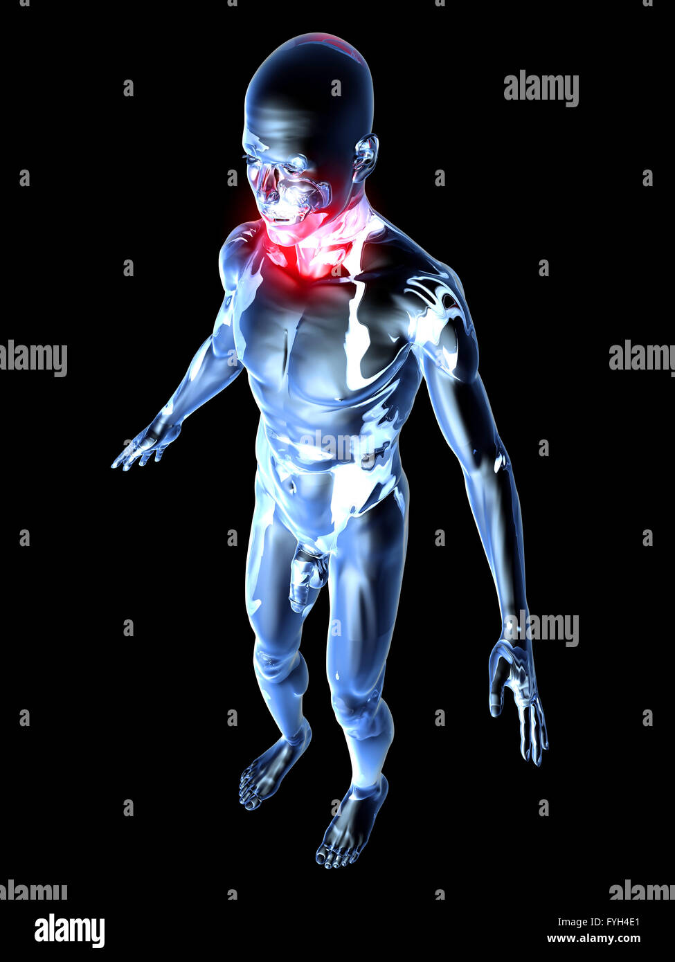 Sore Throat - Anatomy Stock Photo: 103024265 - Alamy