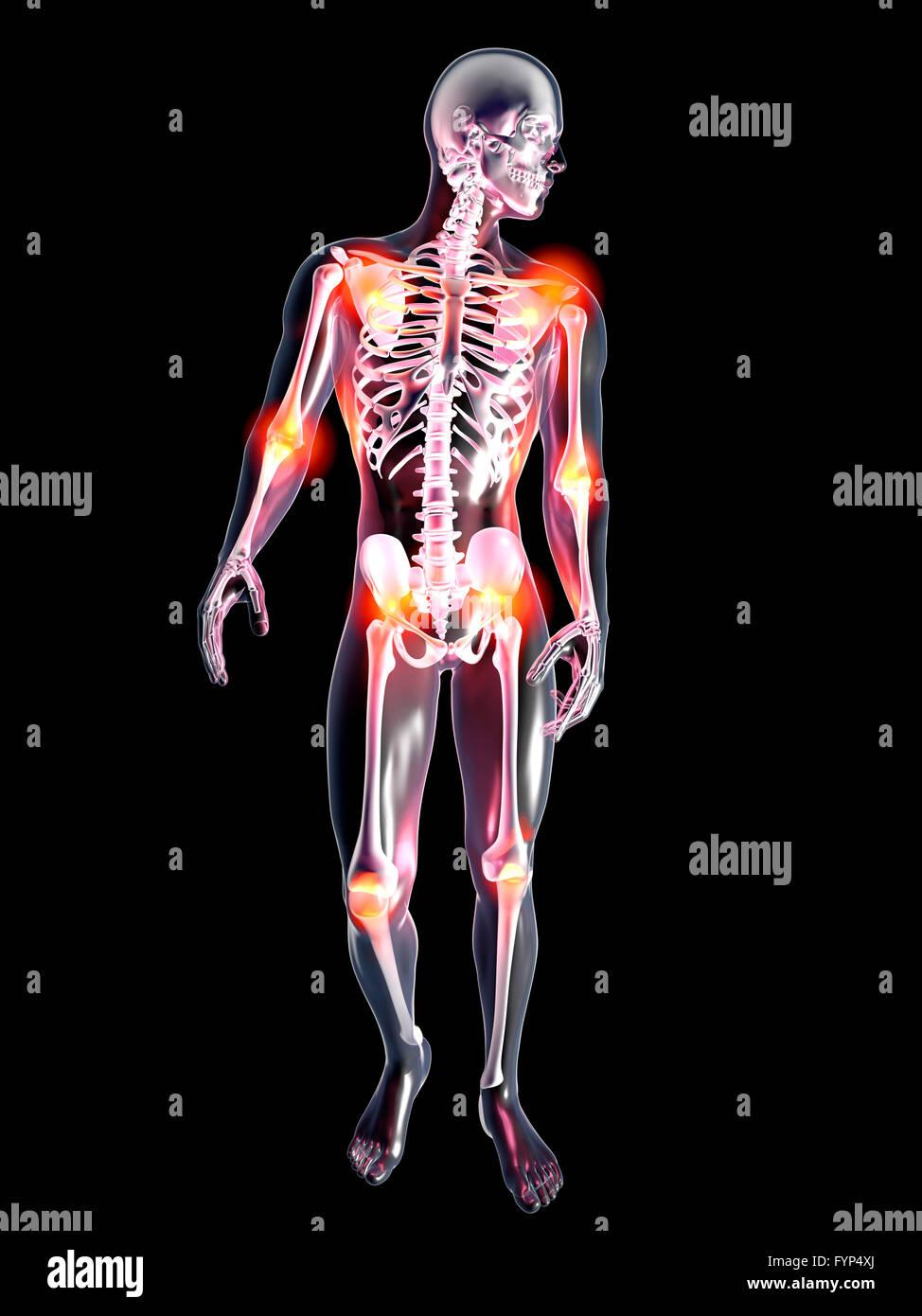 Arthritis Joints Pain Anatomy Male Stock Photos & Arthritis Joints ...