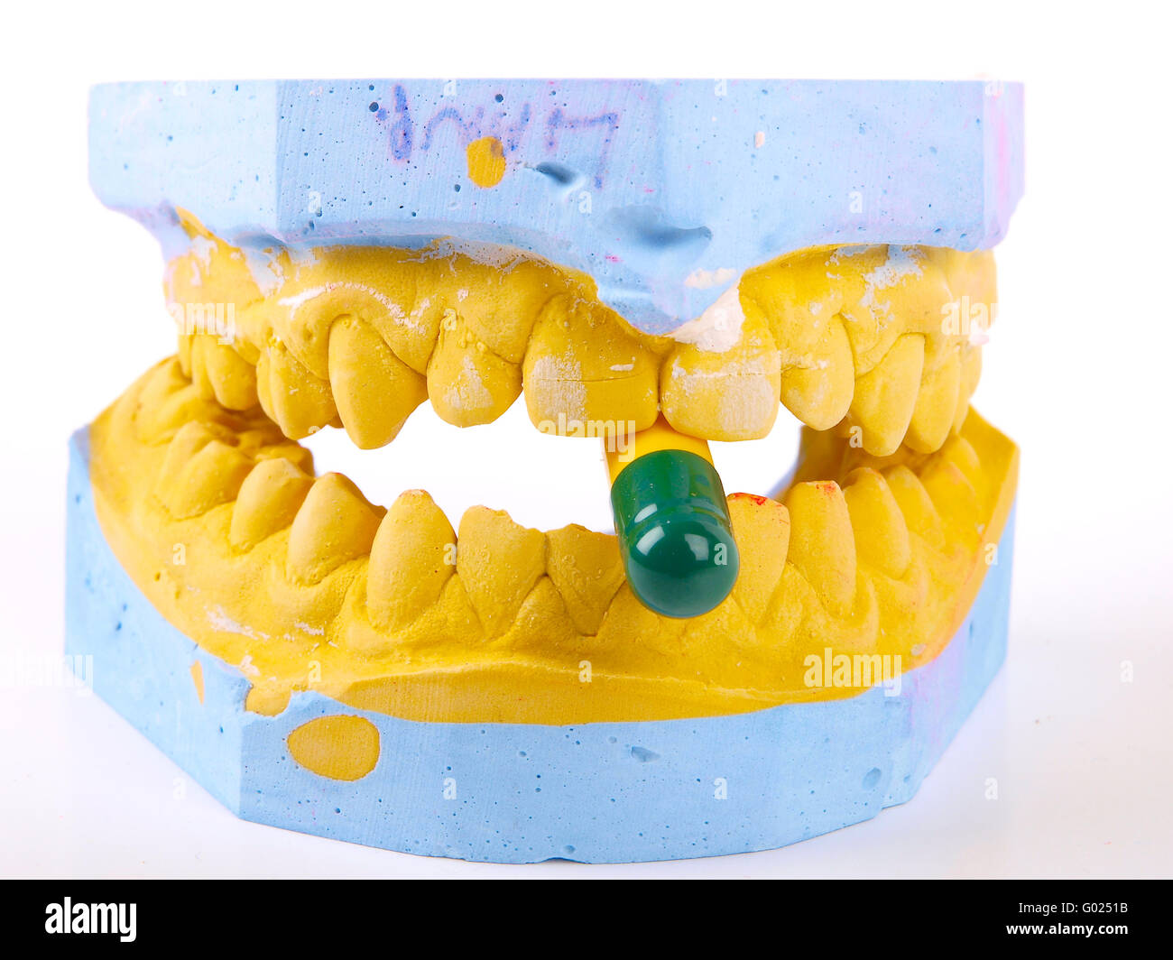 teeth plaster cast - Stock Image