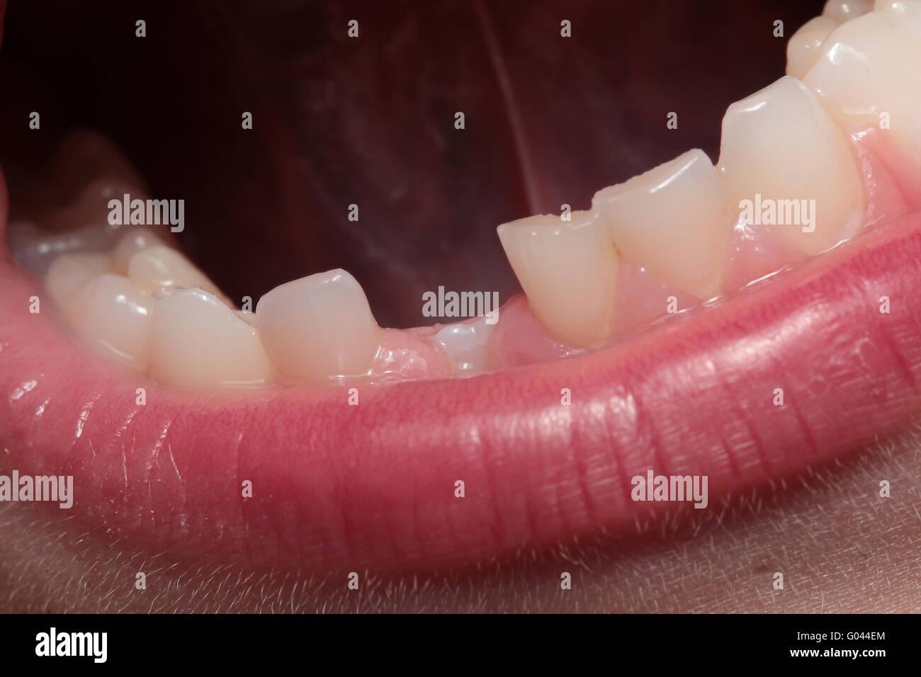 tooth gap Stock Photo