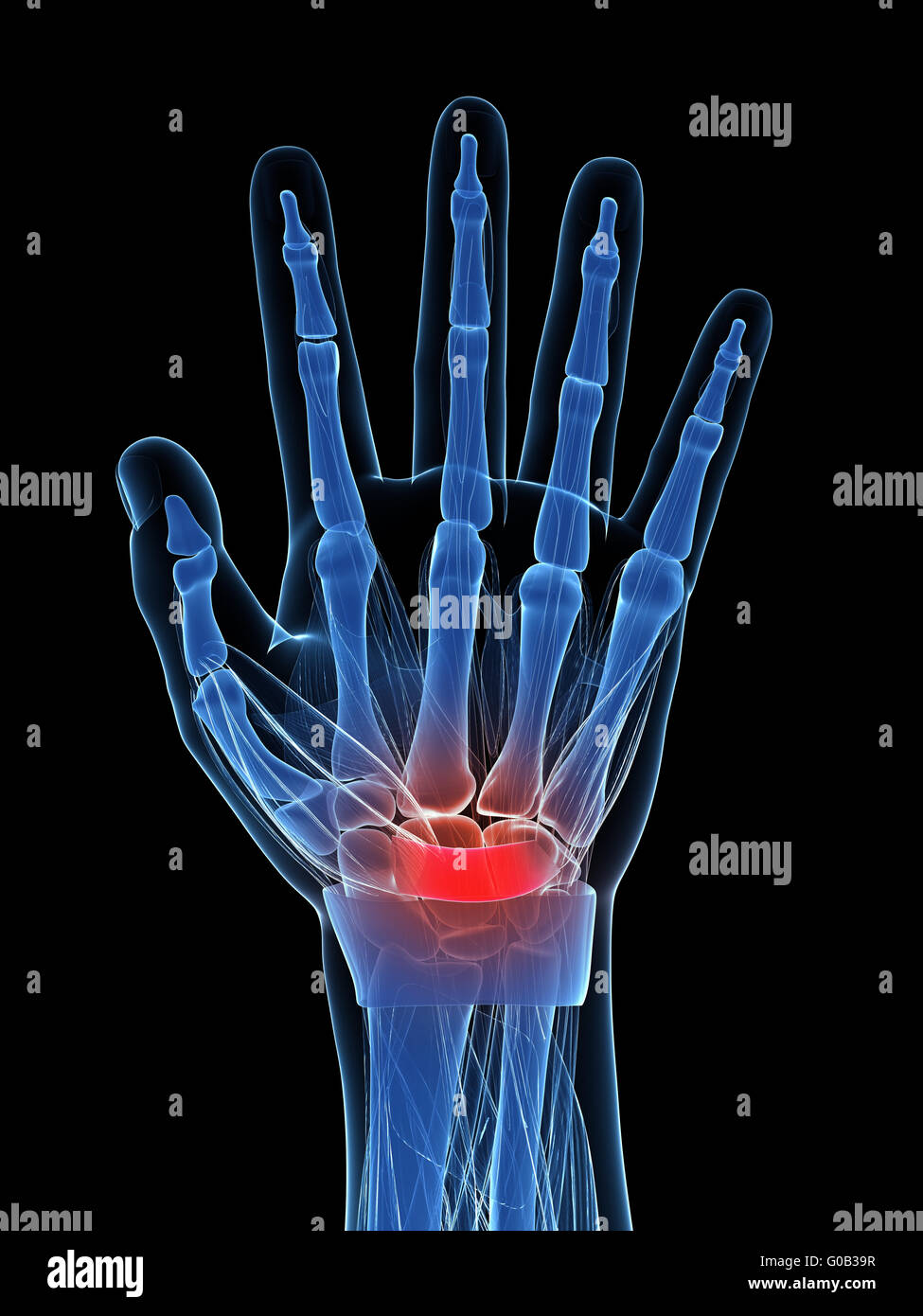 3d rendered illustration of the carpal tunnel syndrome - Stock Image