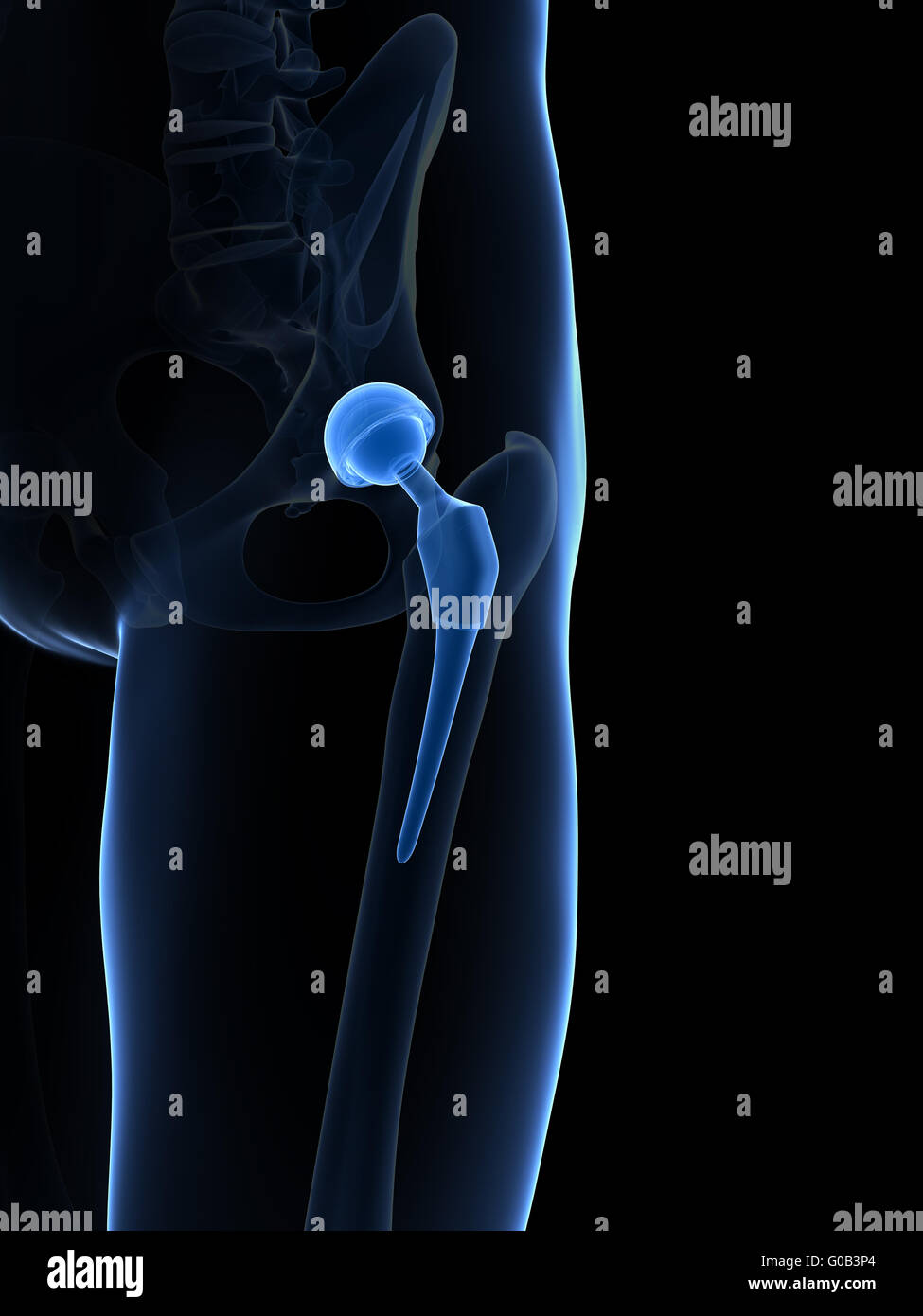 3d rendered illustration of a hip replacement - Stock Image