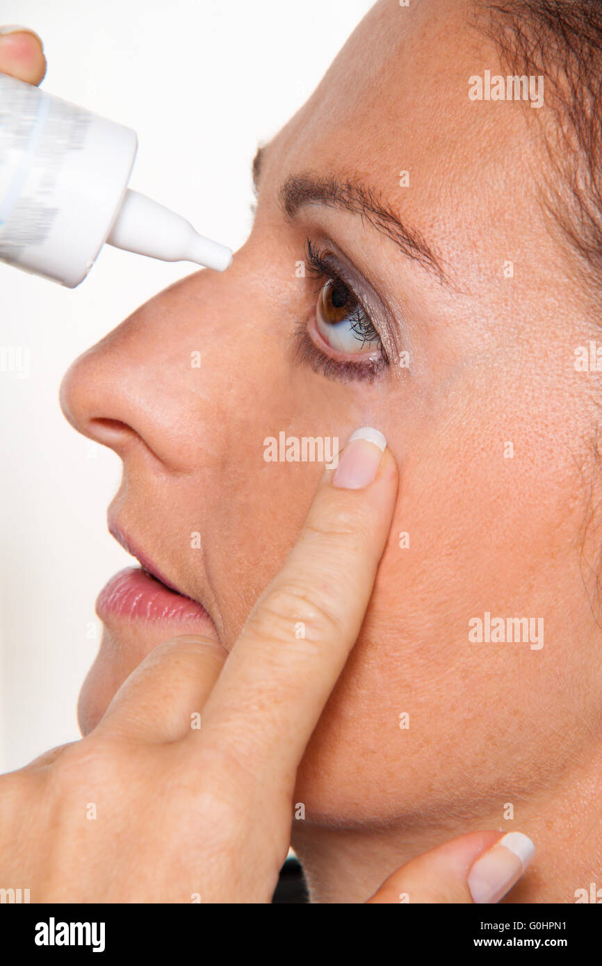 Woman with allergies and eye drops. Hay fever Stock Photo