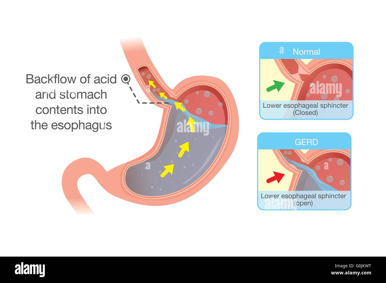 Acid in stomach back up into esophagus stock vector art acid in stomach back up into esophagus ccuart Image collections
