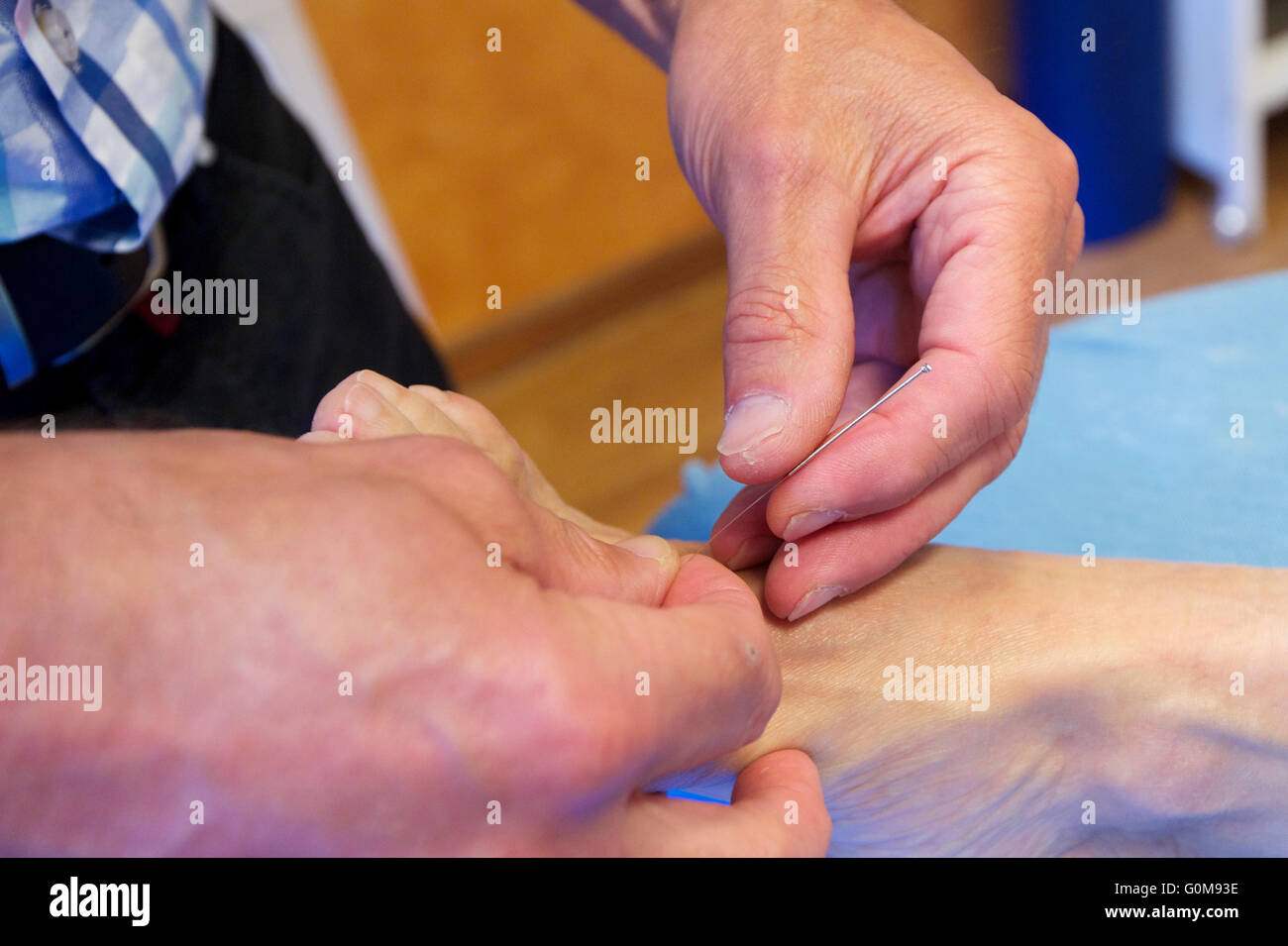 Alternative medicine. Acupuncture. - Stock Image