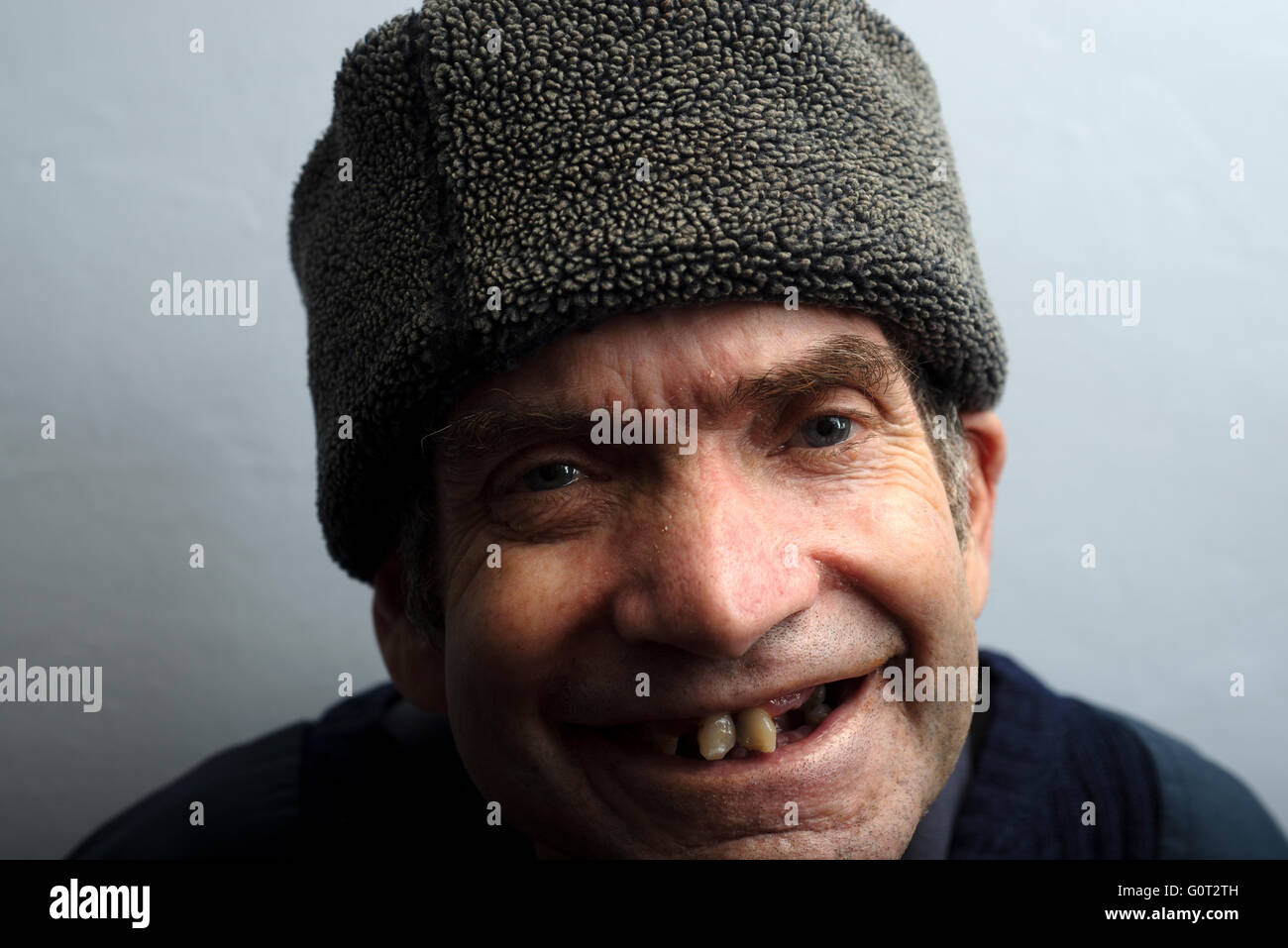Man with learning difficulties living with inoperable throat cancer - Stock Image
